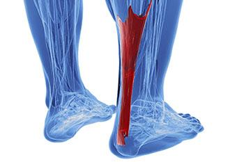Achilles Tendonitis Treatment in the Wayne, NJ 07470 and Caldwell, NJ 07006 area