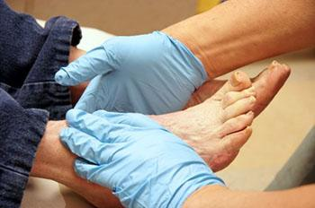 diabetic foot care in the Wayne, NJ 07470 and Caldwell, NJ 07006 areas